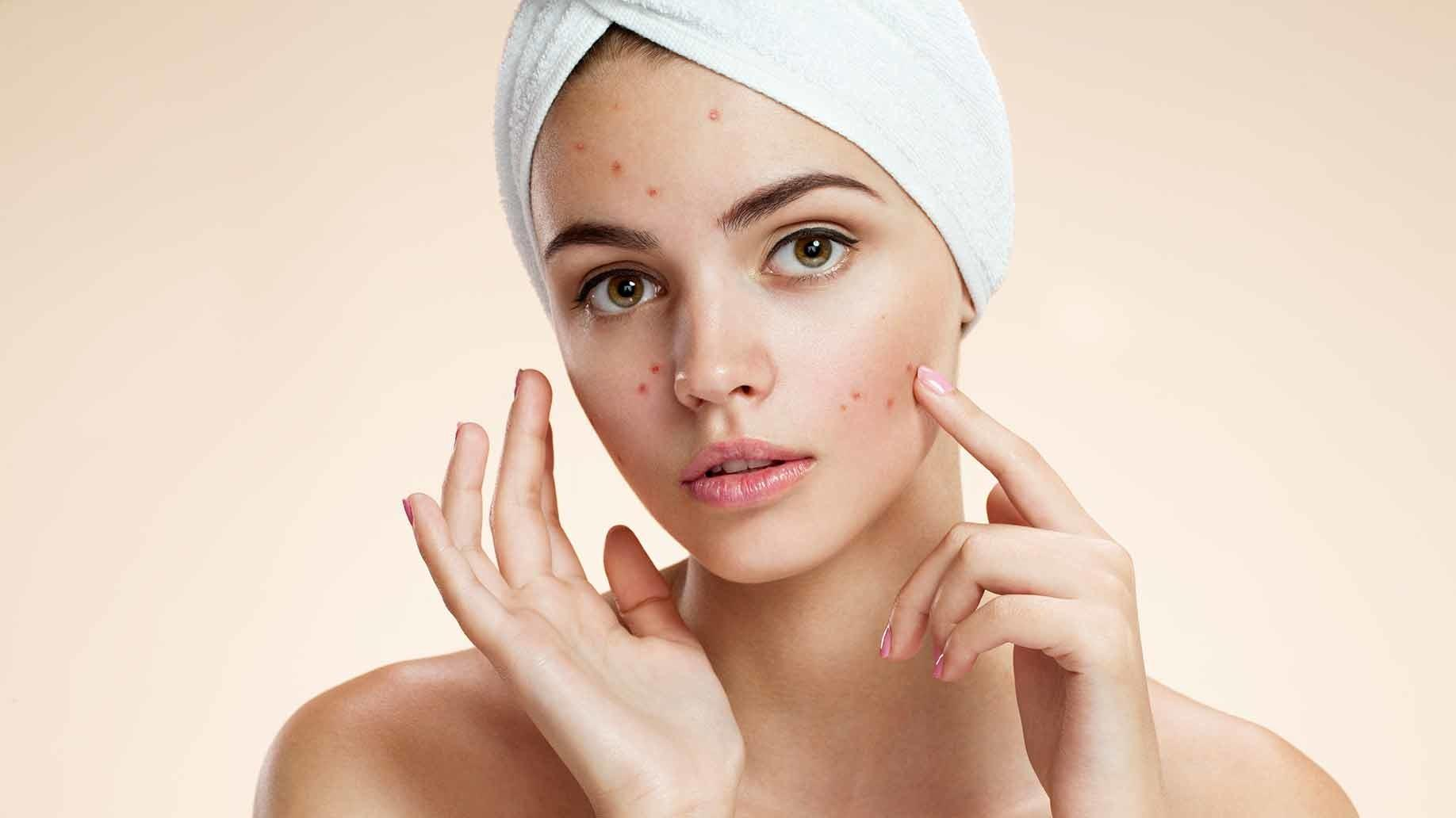 Best Homemade Diy Face Masks Acne Recipes