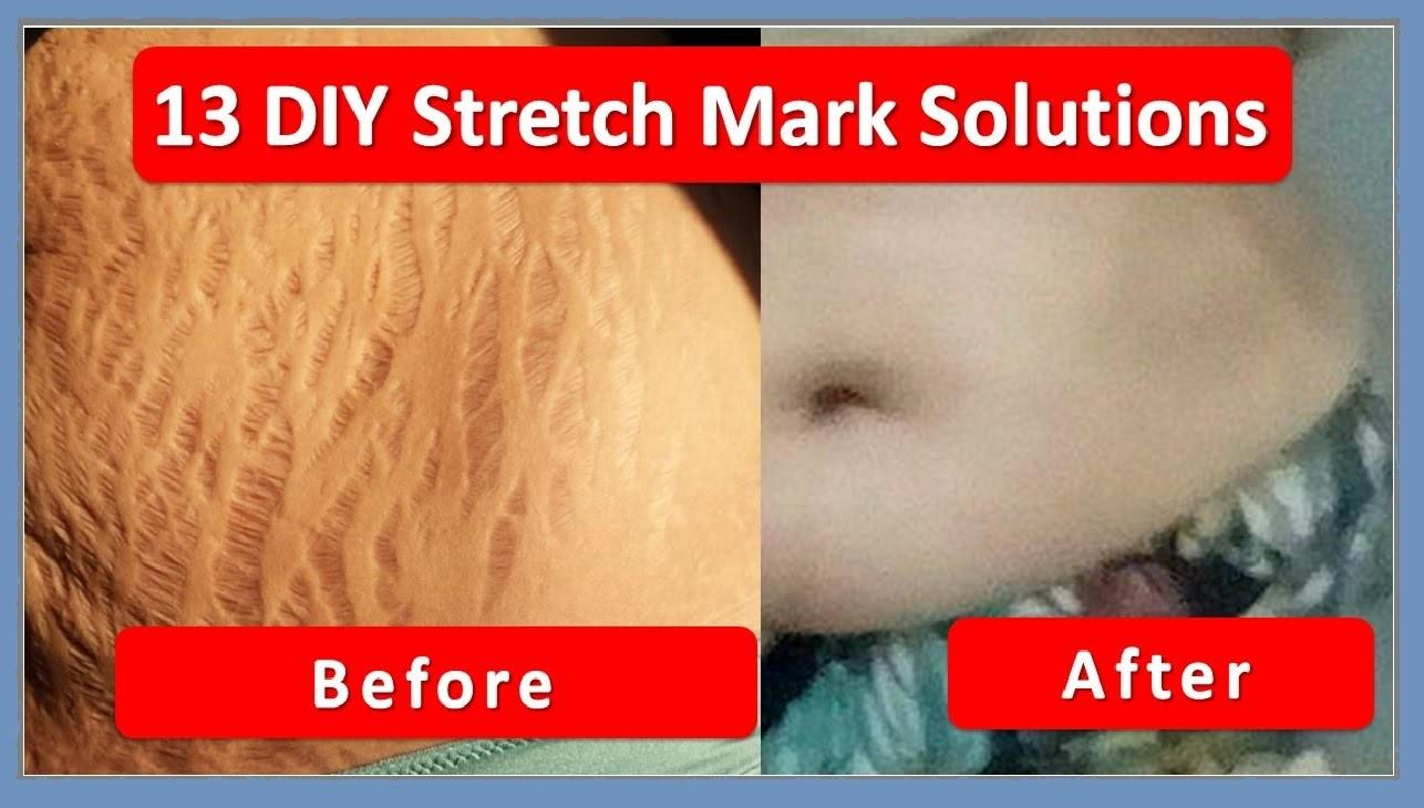 Diy Stretch Mark Solutions Home Remedies