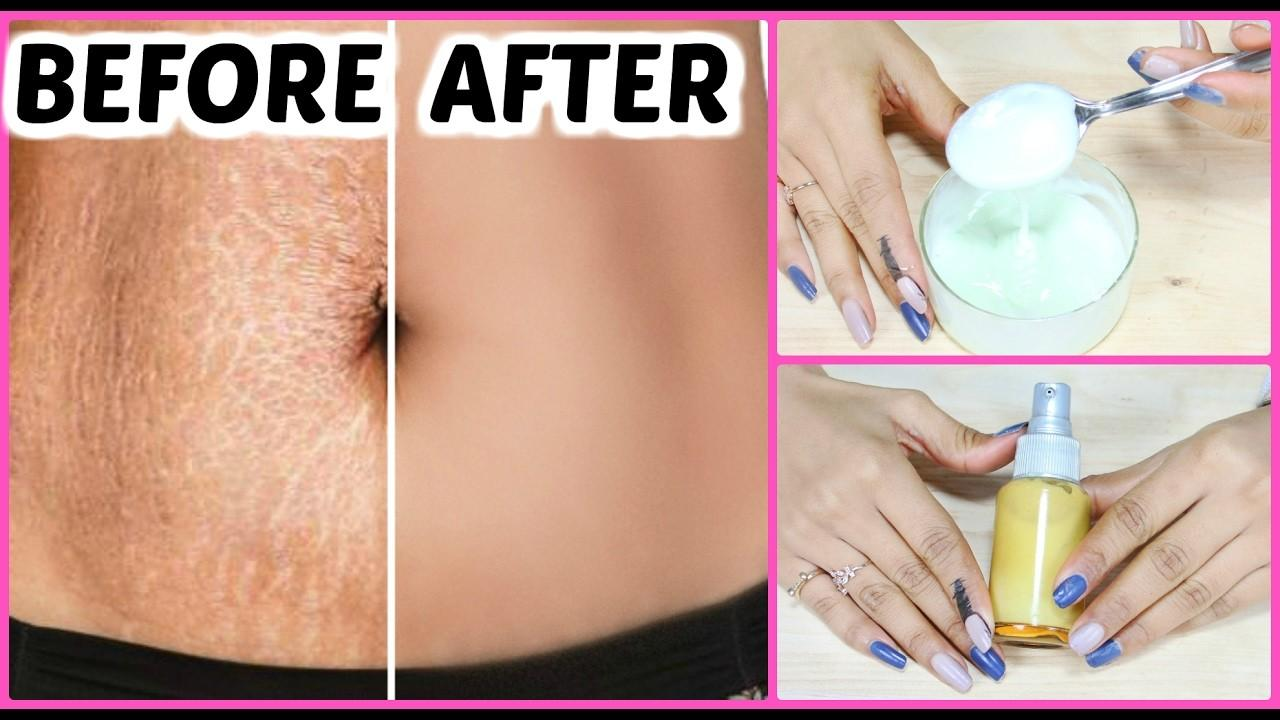 Diy Stretch Marks Removal Cream Guaranteed Results