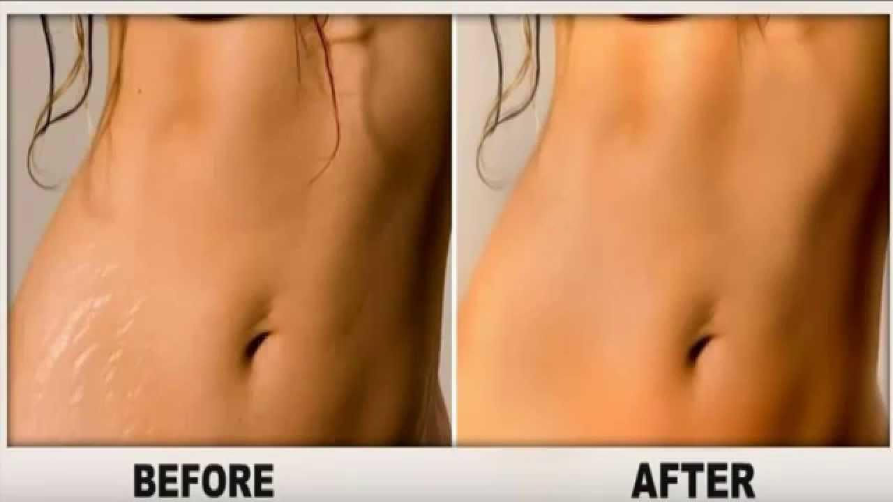 Get Rid Those Ugly Looking Stretch Marks These