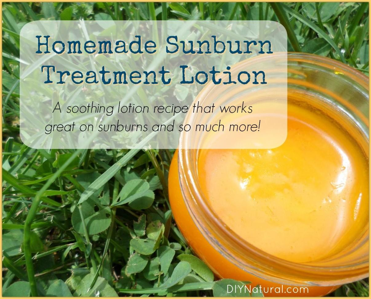 Home Remedies Sunburn Diy Treatment Lotion