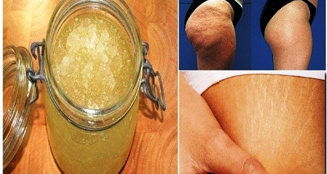 Most Effective Homemade Peeling Cream Against Stretch